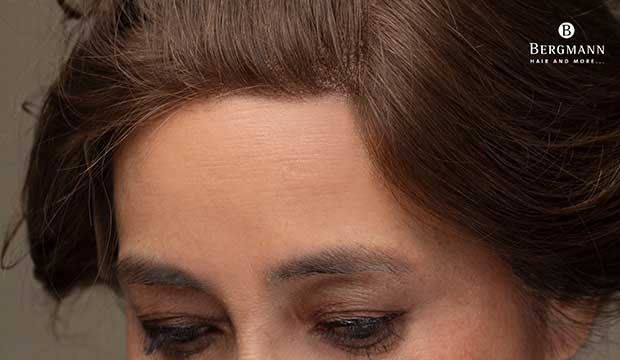 wigs-hair-prosthesis-new-age-bergmann-kord-hair-clinics-home-page-3-boxes-natural-hair-line-001