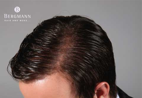 wigs-hair-prosthesis-new-age-bergmann-kord- hair-clinics-home-page-carousel-complete-coverage-001